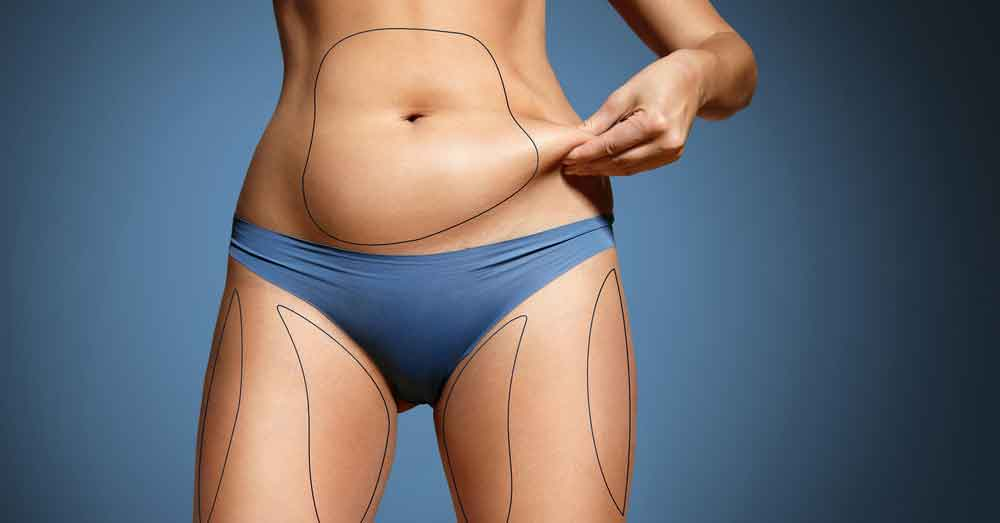 How much does it cost to get liposuction 1