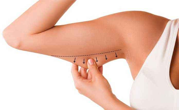 What is the recovery time for liposuction 10