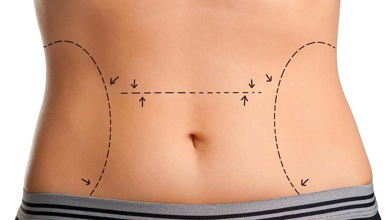 What is the recovery time for liposuction 3