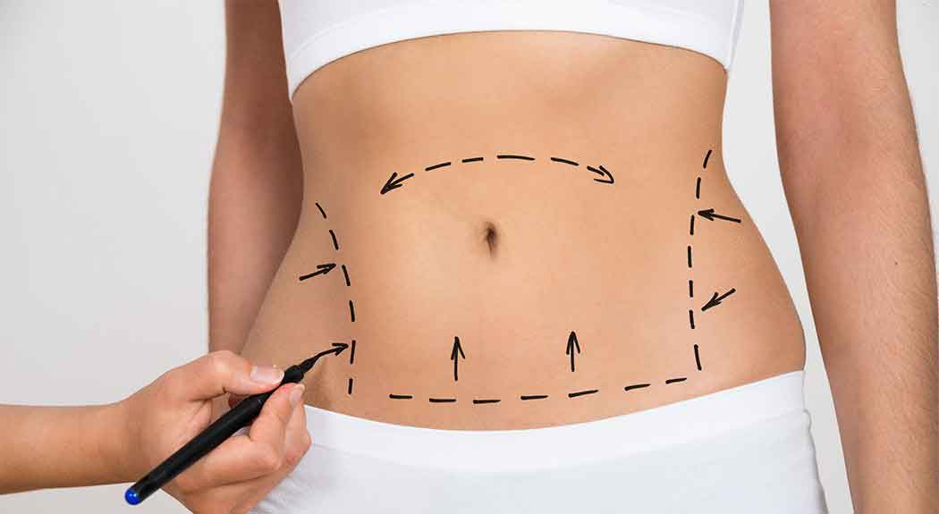 What is the recovery time for liposuction 4