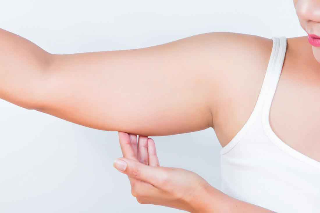 What is the recovery time for liposuction 7