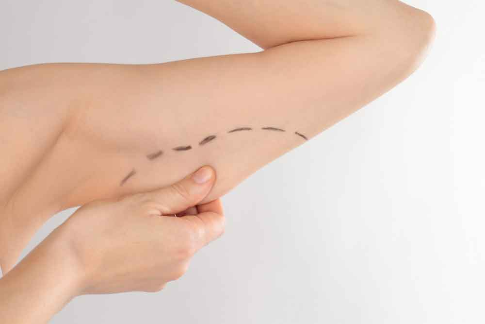 How long does liposuction take to heal 1