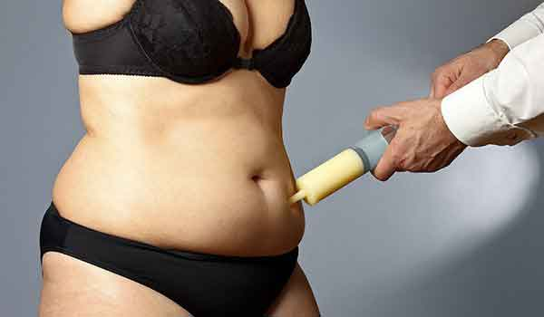 How much does it cost for liposuction 1