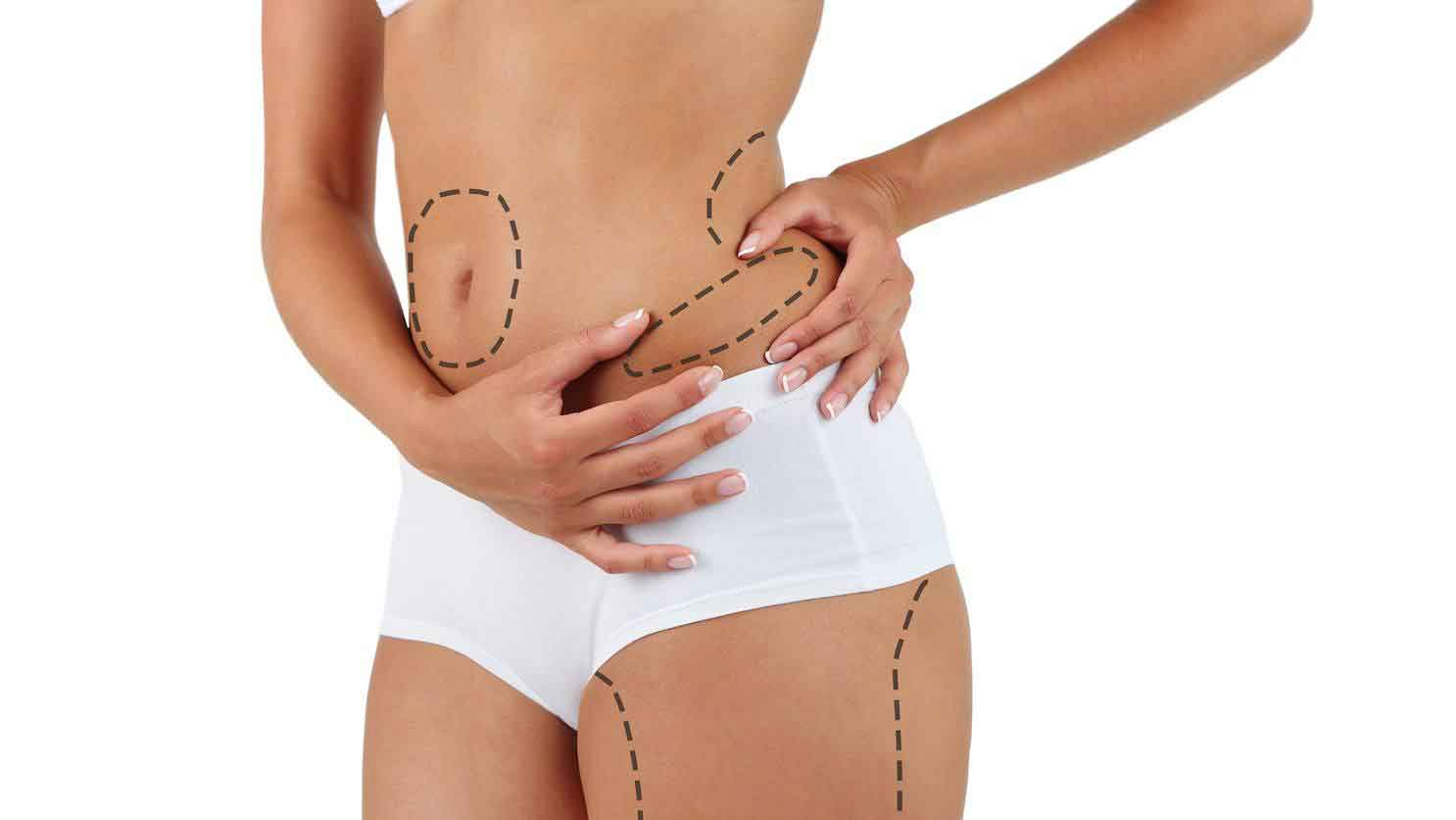 Liposuction pictures 2