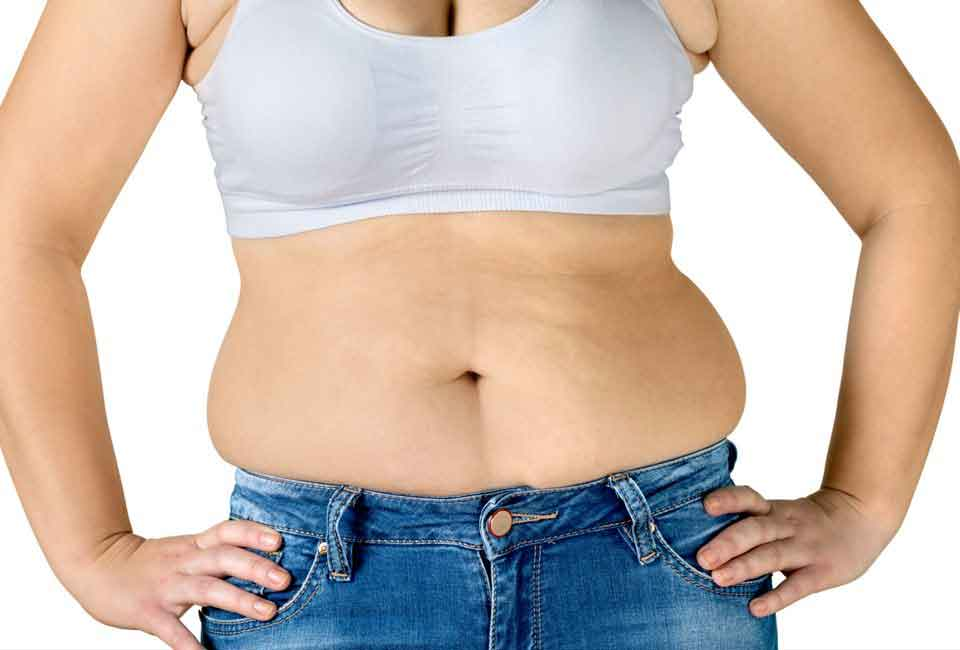 Liposuction results stomach 3