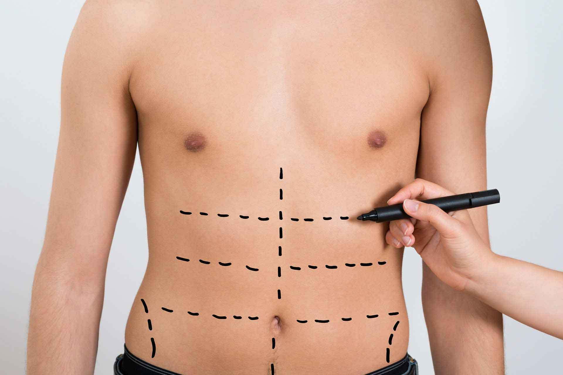 Male liposuction before after 2
