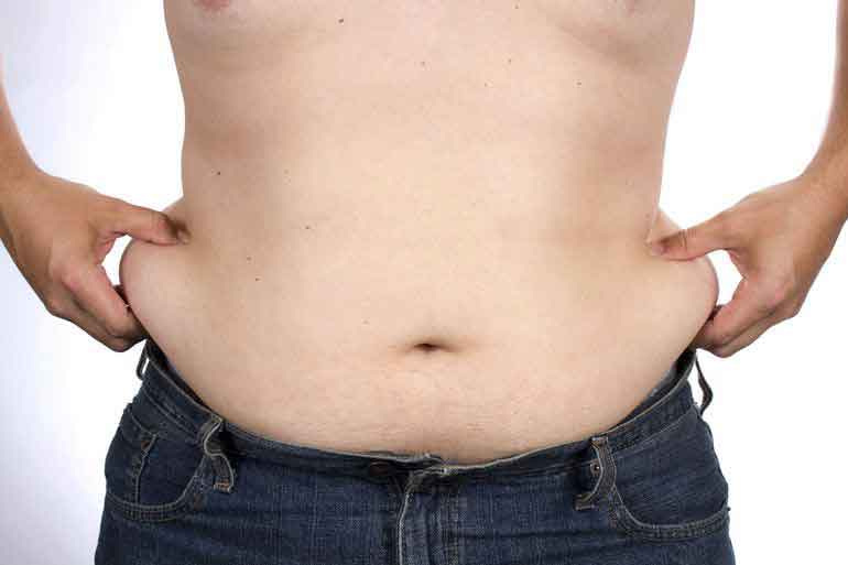Male liposuction before after 3