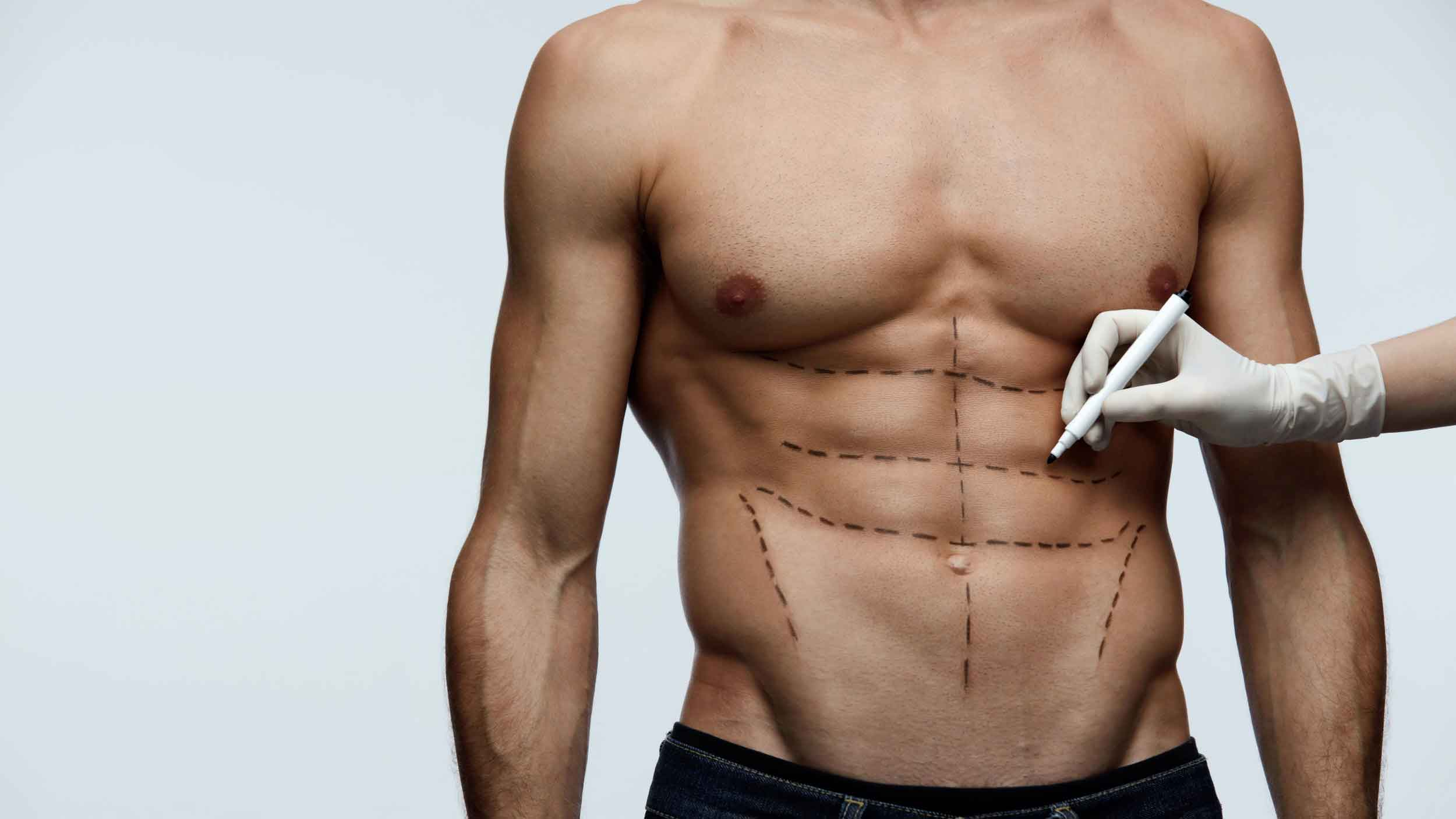 Male liposuction before after 5