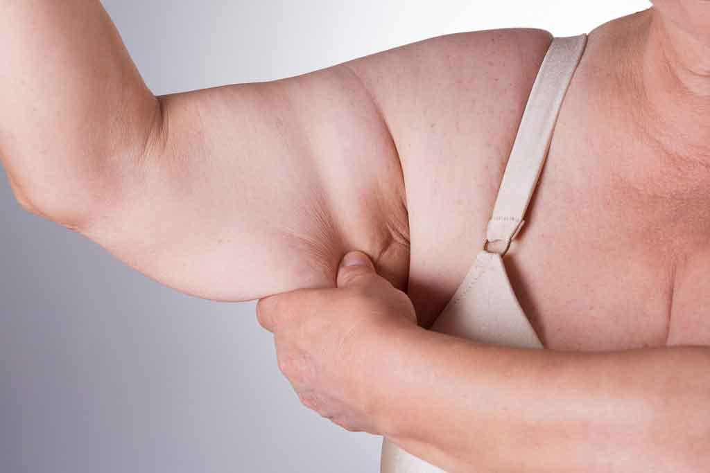 Obese liposuction 1