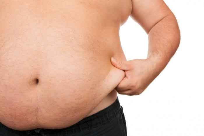 Obese liposuction 2