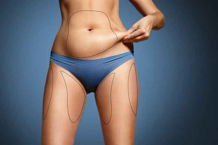 Recovery from liposuction on stomach 2