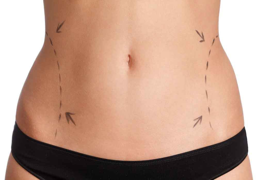 Recovery from liposuction on stomach 3