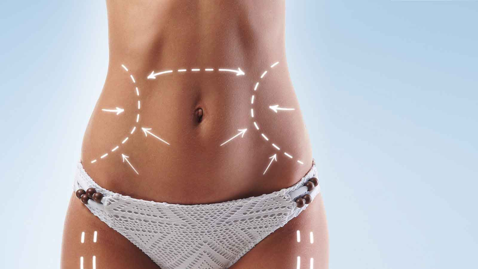Different types of liposuction 3