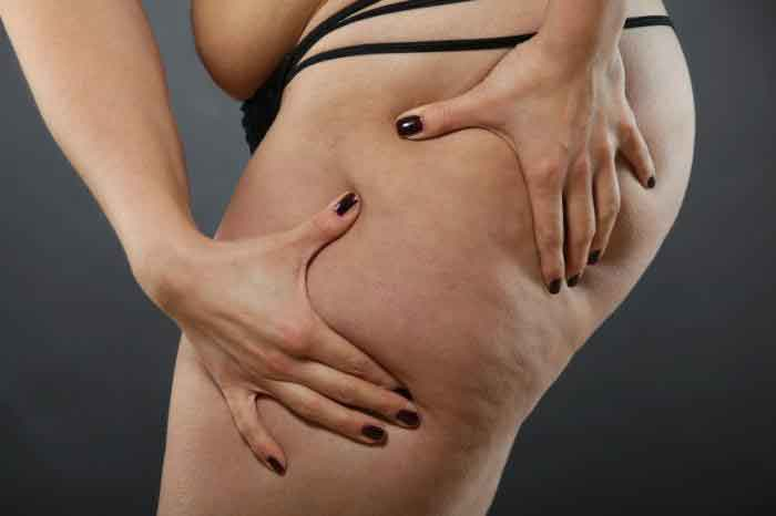 Effects of liposuction 2