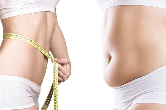 Weight loss after liposuction 2