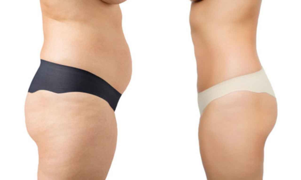 What is liposuction surgery 8