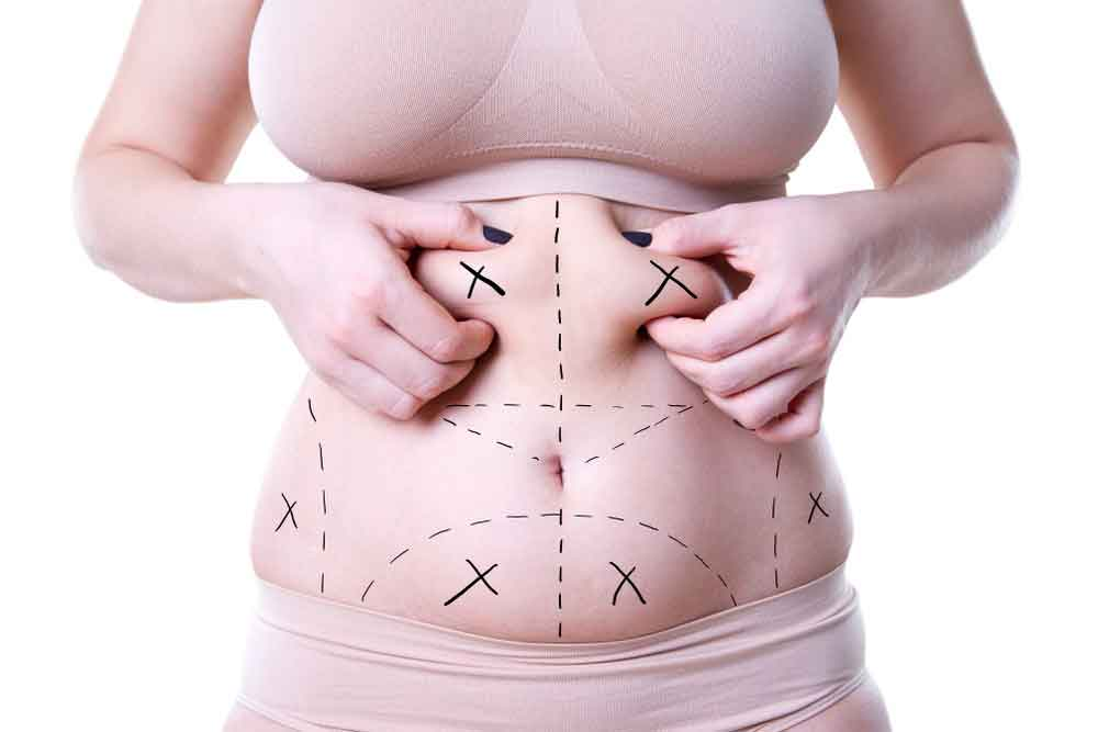 Affordable liposuction 3