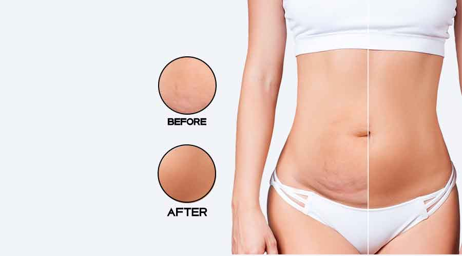 Belly liposuction 1