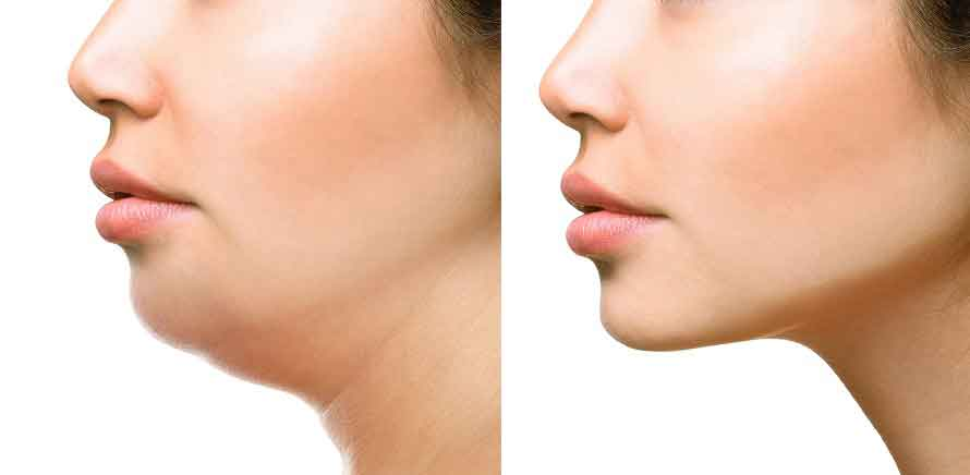 Face liposuction 1