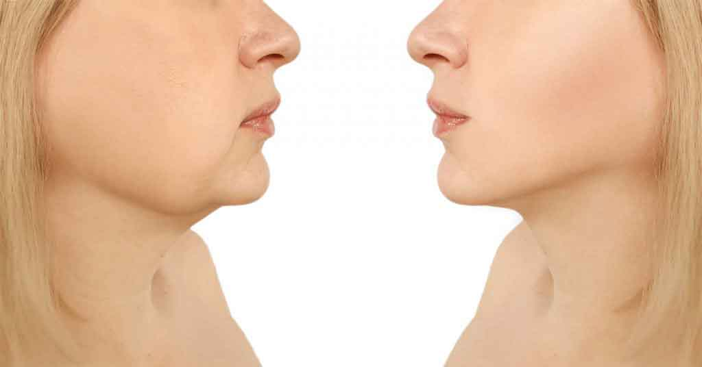 Face liposuction 2