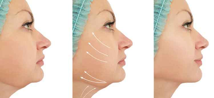 Face liposuction 3