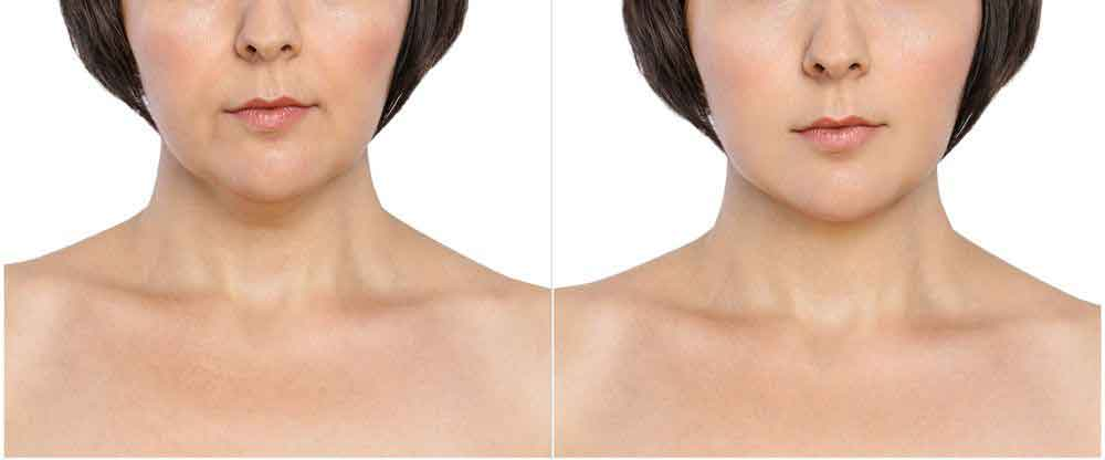 Face liposuction 7
