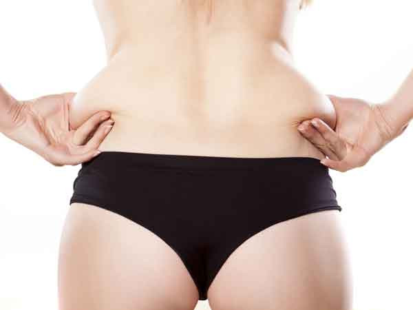 Laser assisted liposuction 2