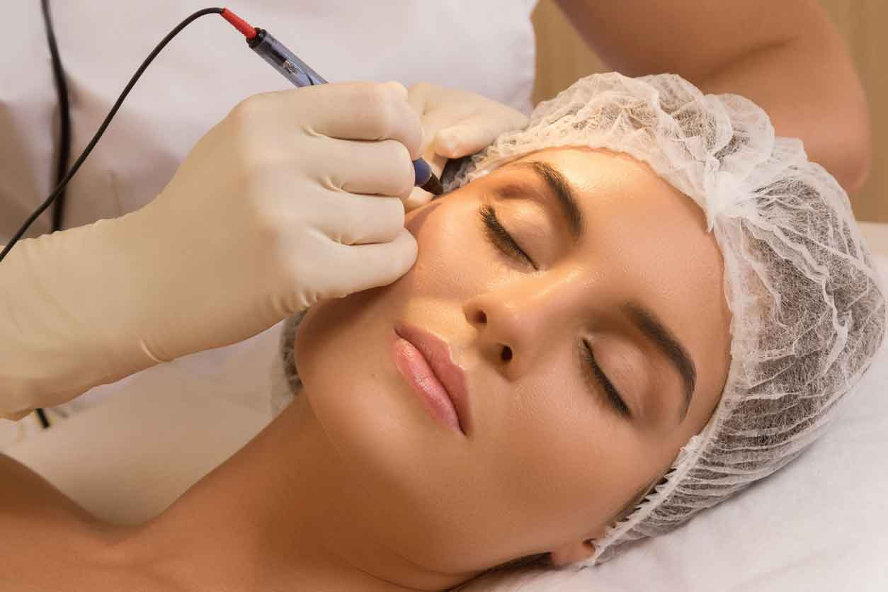 Laser cosmetic surgery 2