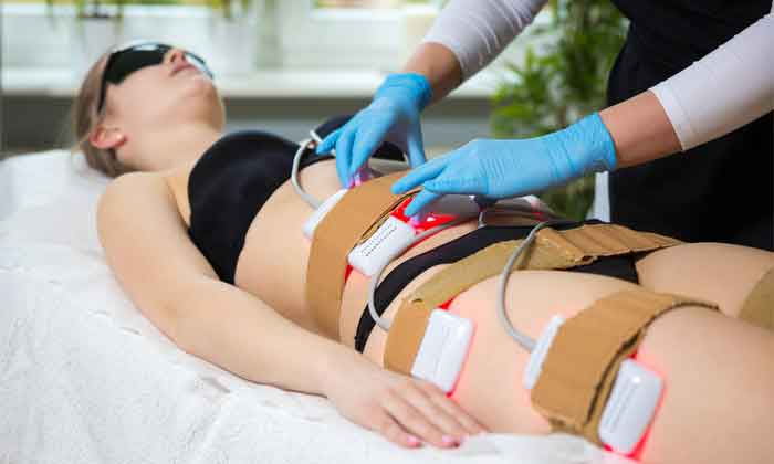 Lipo laser treatment 6