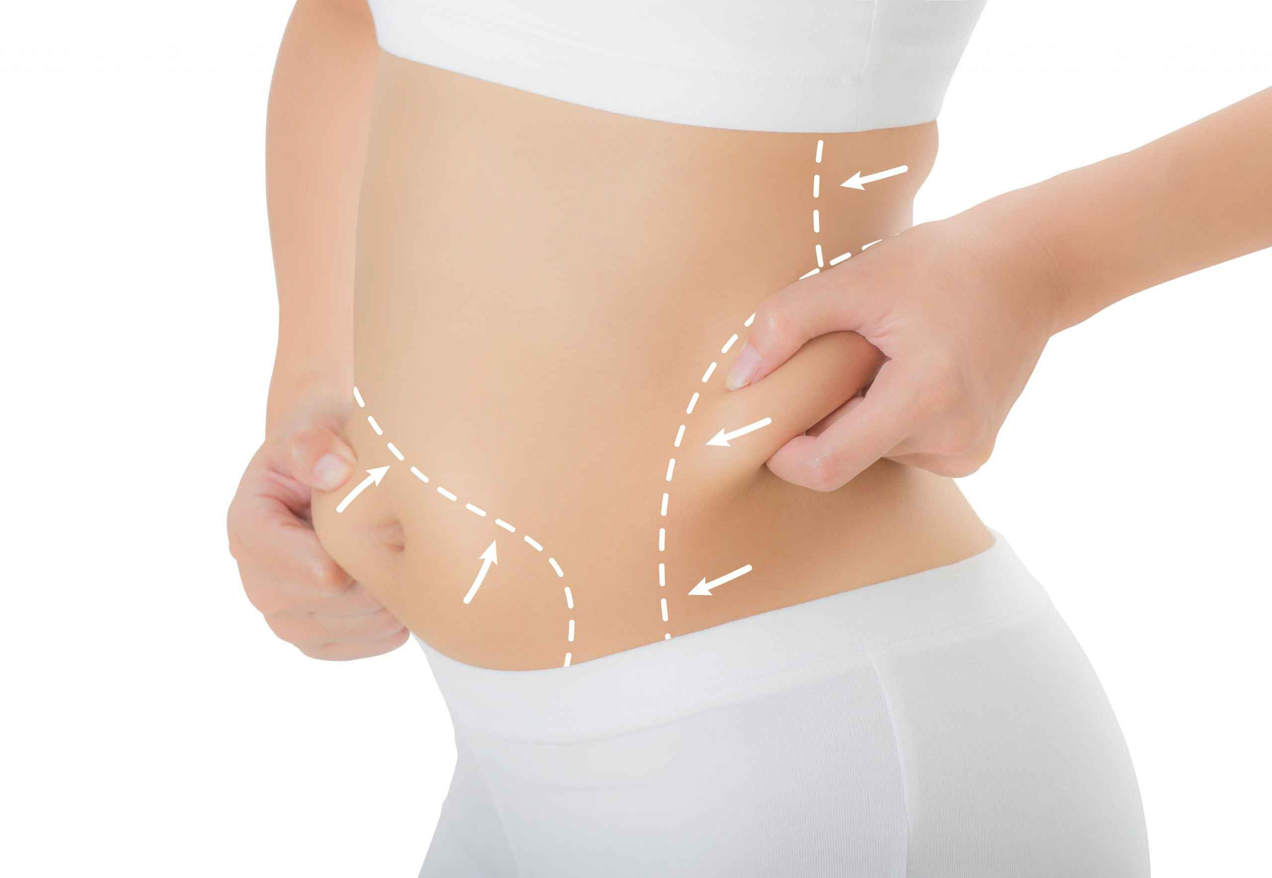 Power assisted liposuction 1