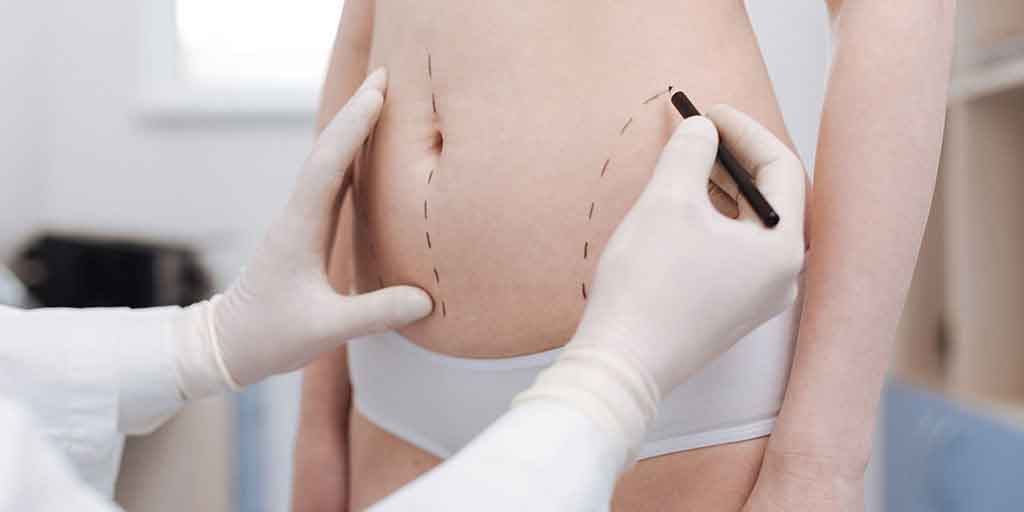 Power assisted liposuction 4