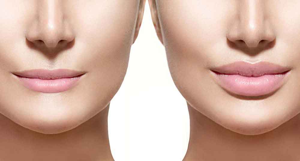 Cosmetic surgery loans 1