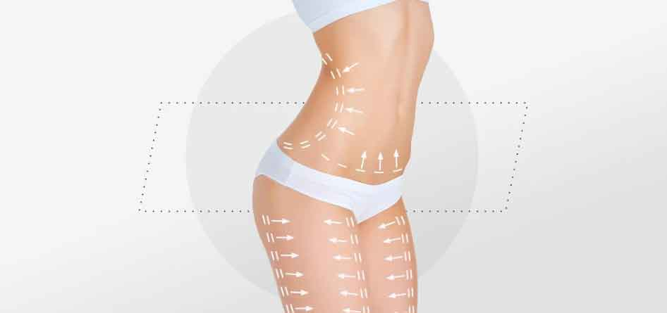 Compression garments after liposuction 5