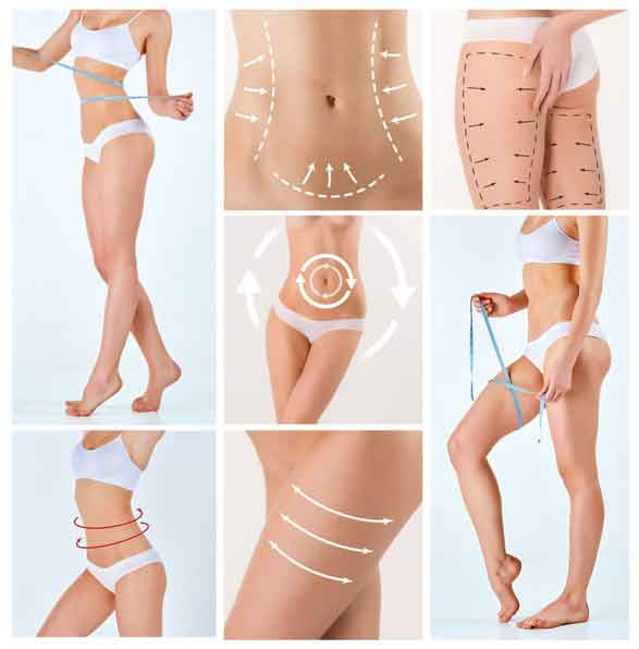 Does liposuction work 1