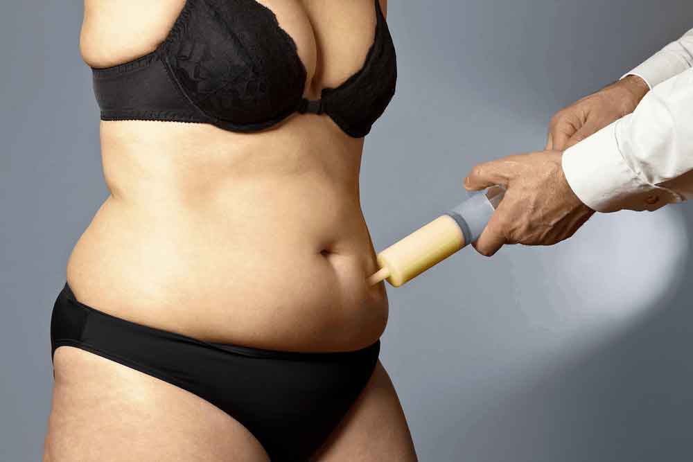 How much is liposuction cost 3