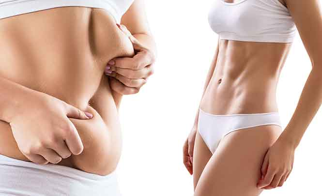 Liposuction and tummy tuck 3