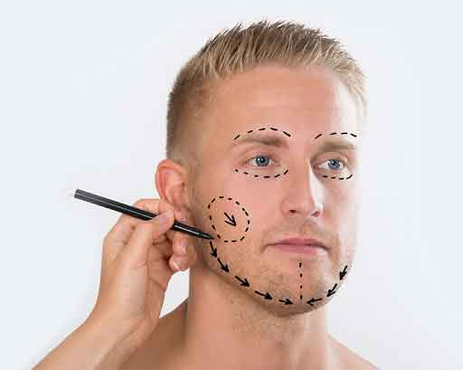 Plastic surgery for men 5