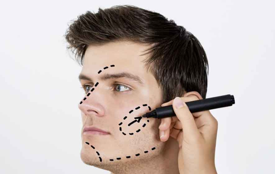 Plastic surgery for men 6