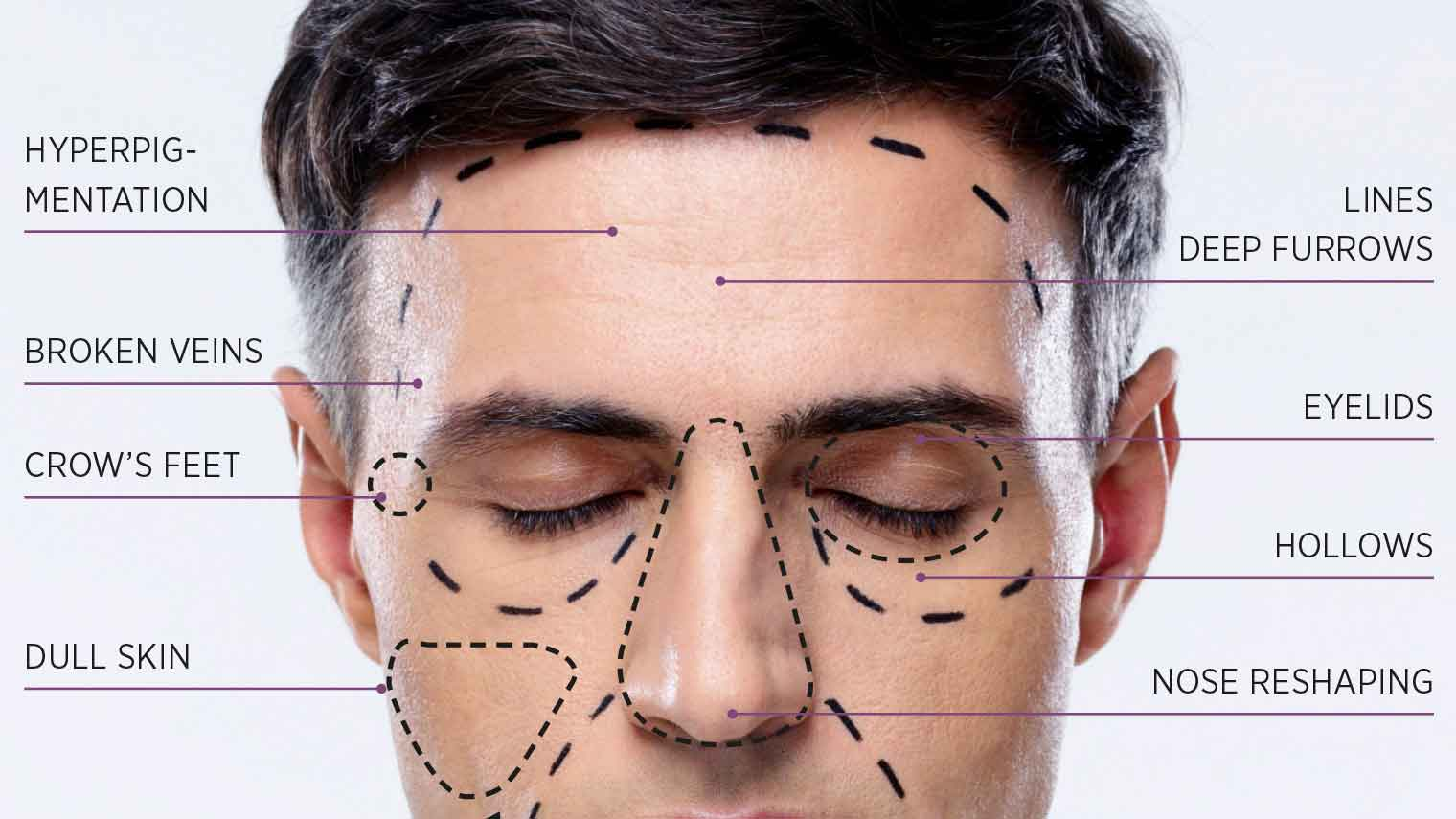 Plastic surgery for men 7