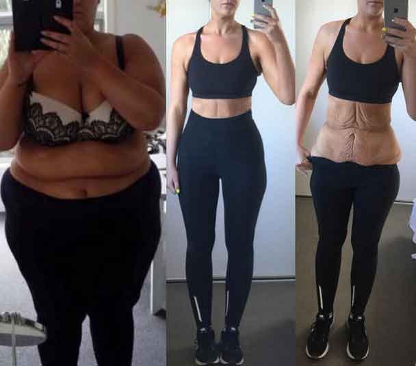80 10 10 diet before and after photos 8