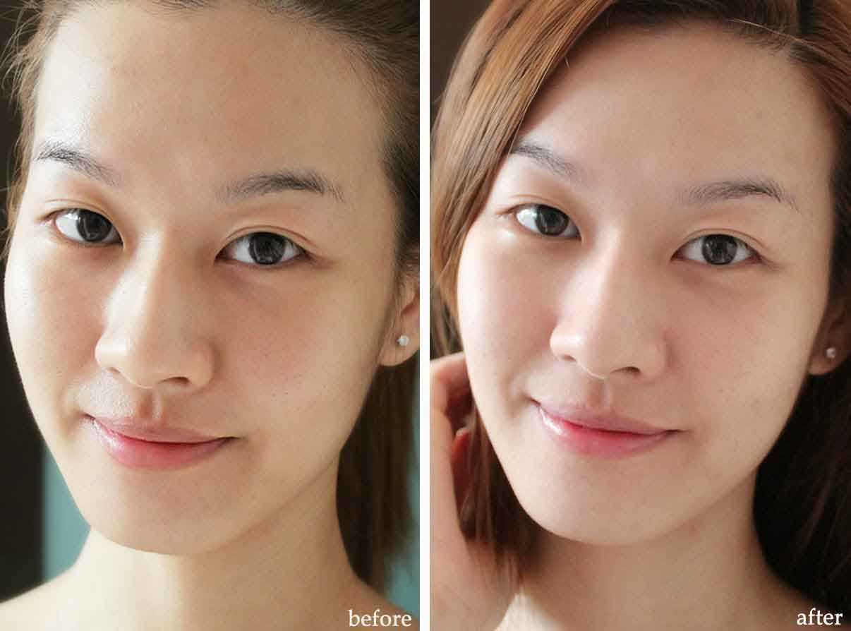 Before and after beauty treatments 10
