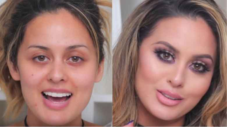 Before and after beauty treatments 13