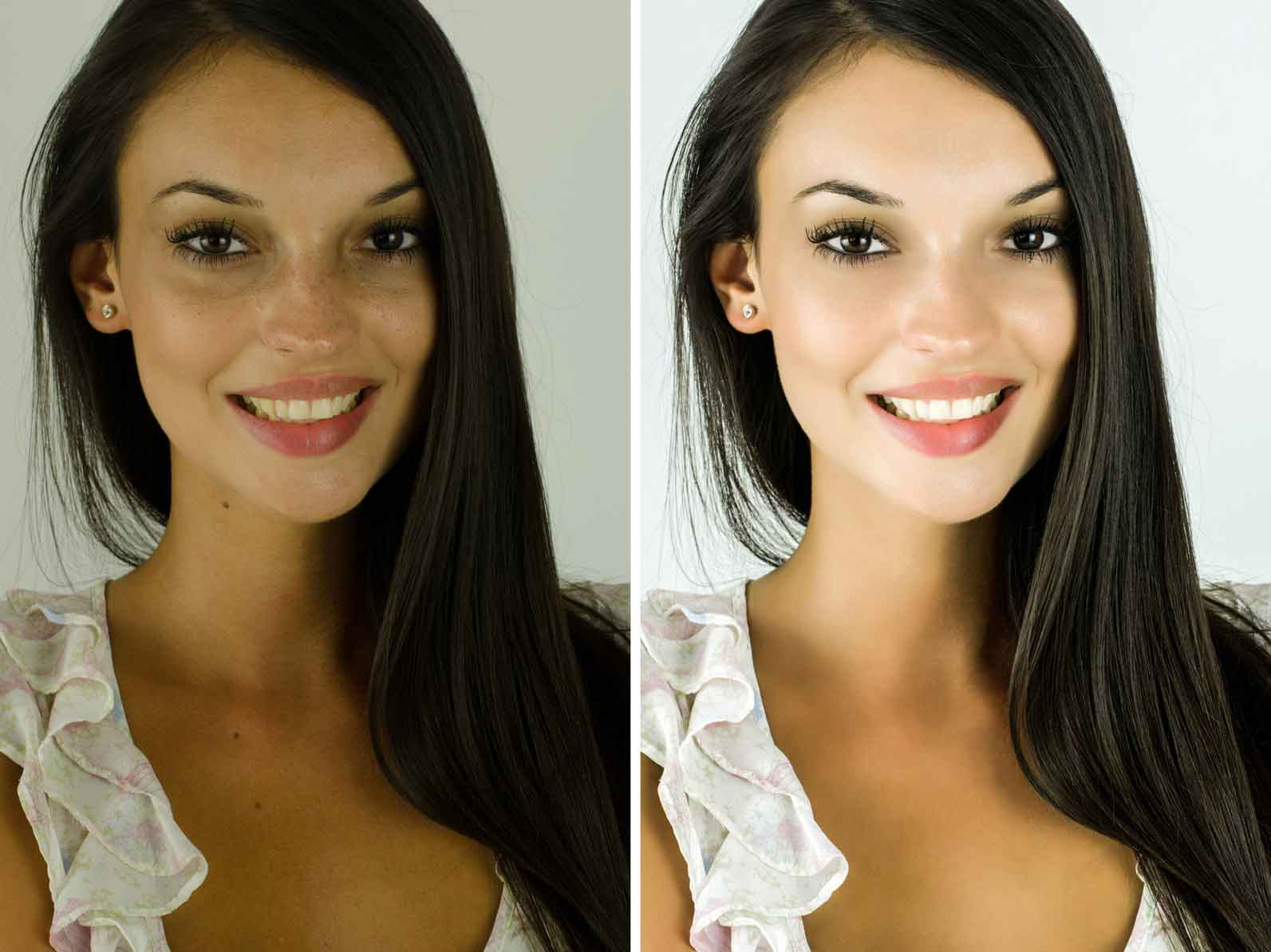 Before and after beauty treatments 14