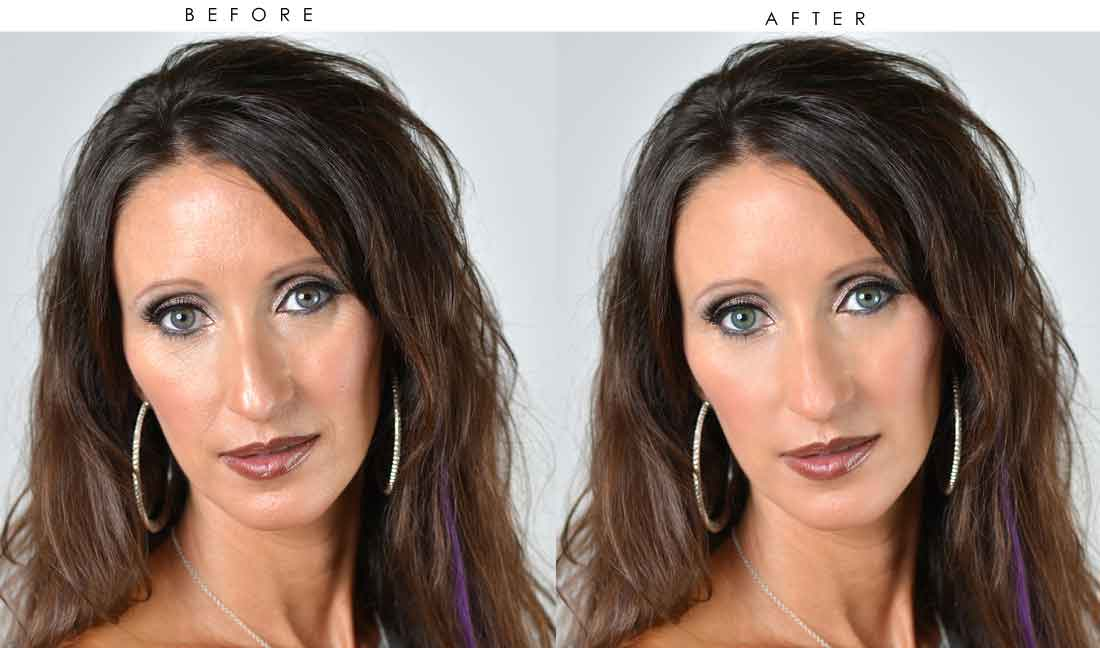 Before and after beauty treatments 15