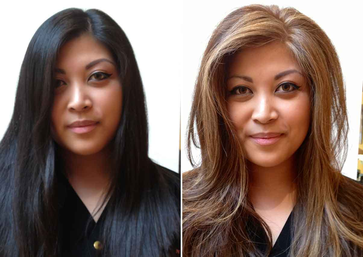 Before and after beauty treatments 4