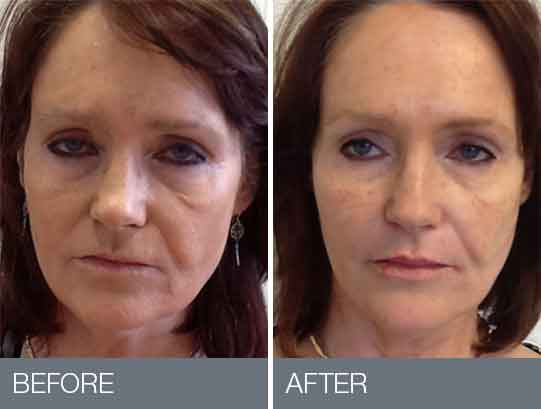 Before and after beauty treatments 6
