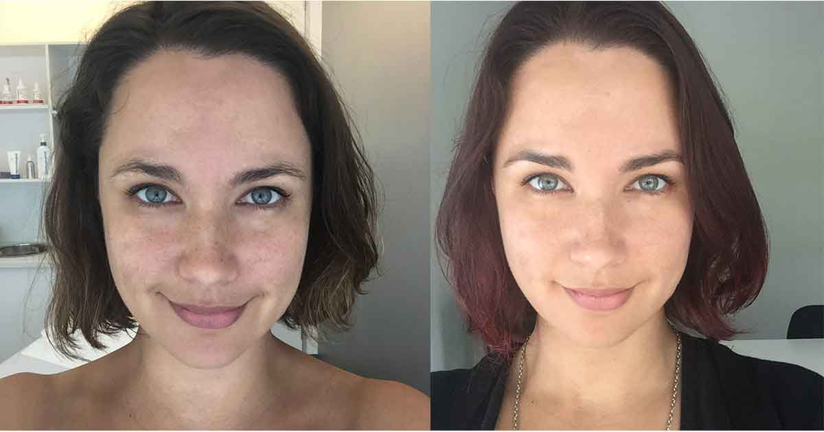 Before and after beauty treatments 8