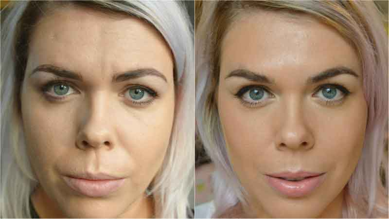 Before and after beauty treatments 9