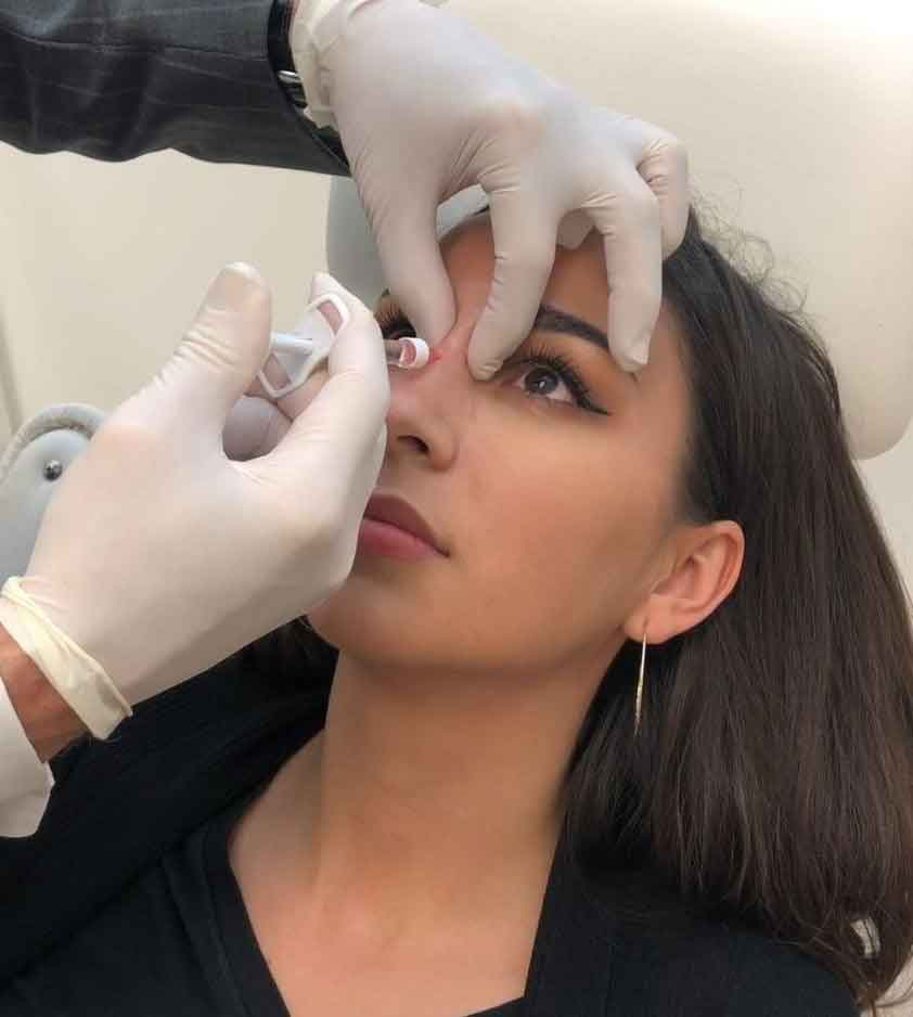 Nose surgery after fillers 1