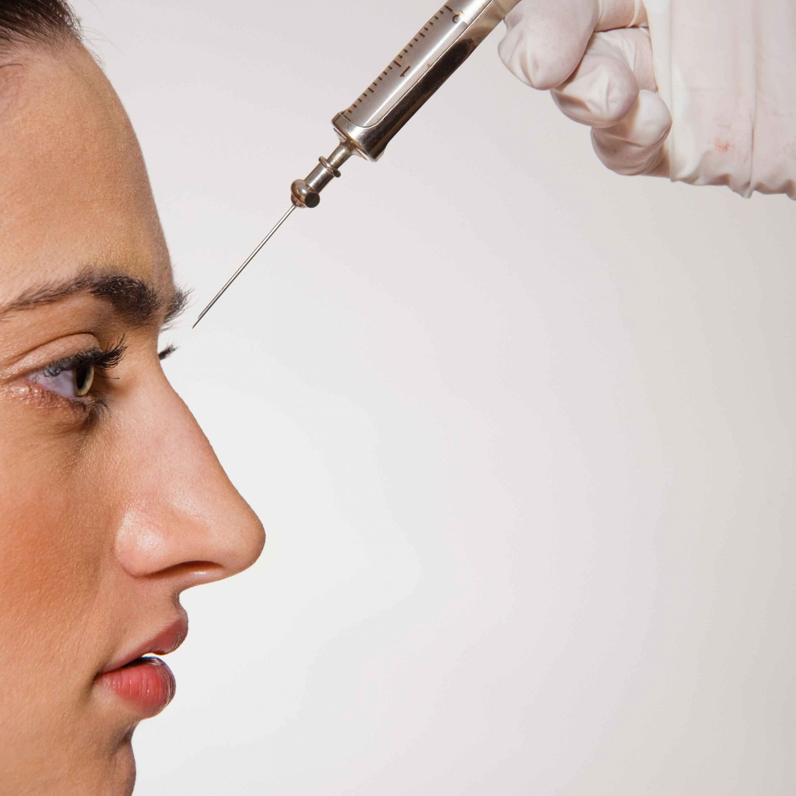 Nose surgery after fillers 5